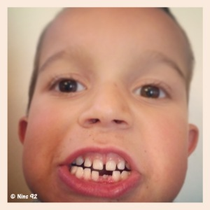 dents2